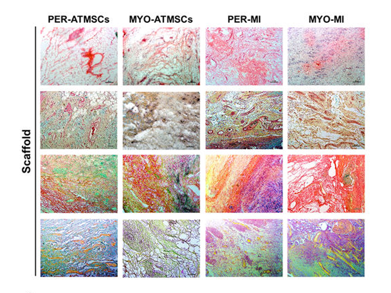 Head-to-head comparison of two engineered cardiac grafts for myocardial repair: From scaffold characterization to pre-clinical testingHead-to-head comparison of two engineered cardiac grafts for myocardial repair: From scaffold characterization to pre-clinical testing