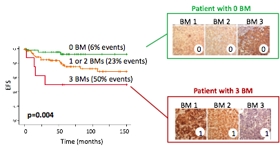 Figure 2. Patient stratification on the basis of the 3-protein signature, resulting in the combination of three prognostic biomarkers (BMs). Left, Kaplan Meier curves of Event-free survival; Right, Immunohistochemistry pictures of the three biomarkers in two patients (top, patient with a good prognostic profile with no biomarkers altered; bottom, patient with a poor prognostic profile with all three biomarkers altered).